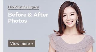 수술전후사진